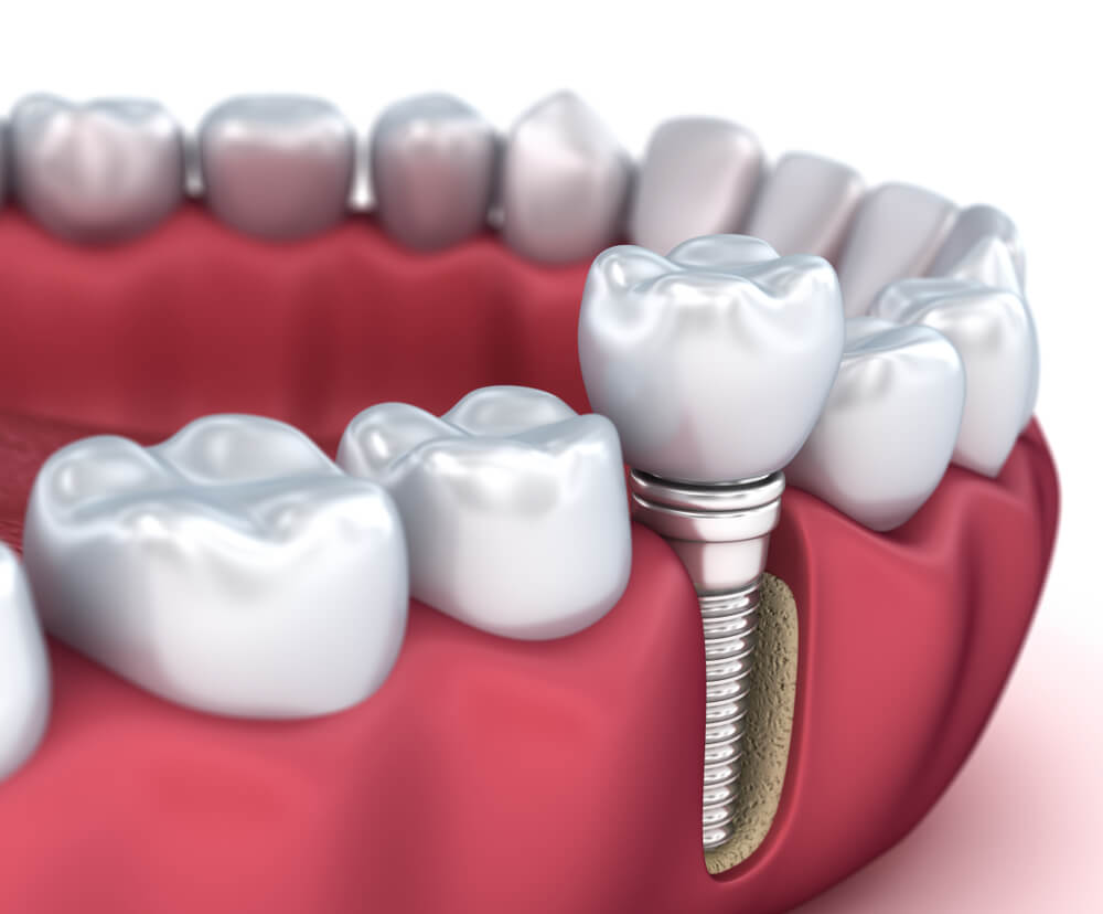 Implant dentaire : De quel implant parle-t-on ?
